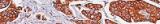 Gomori's trichrome